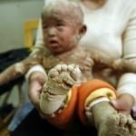 El niño que nació sin poros en la piel sufre una enfermedad incurable