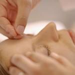 La acupuntura, clave de la belleza en Japón