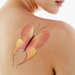 ¿Qué técnicas utilizan los dermatólogos para borrar tatuajes?