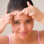 Descubren que la cura para el acné es un virus inofensivo que habita en nuestra piel